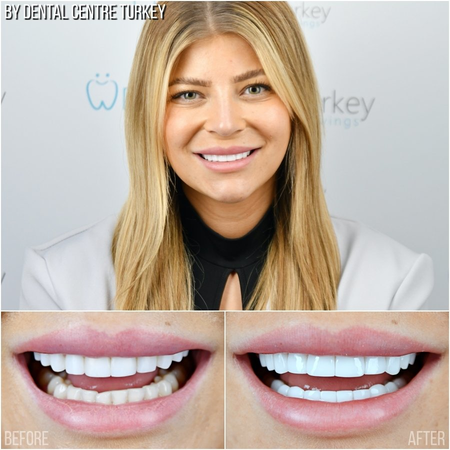 Dental Centre Turkey - Before-After 3