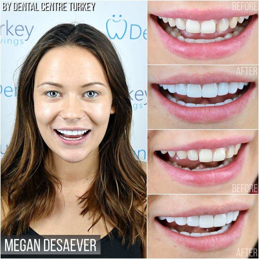 Dental Centre Turkey - Before-After 5