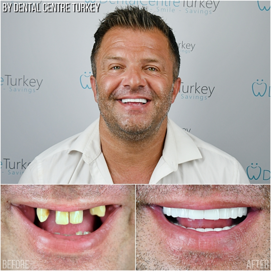 Dental Centre Turkey - Before-After 7