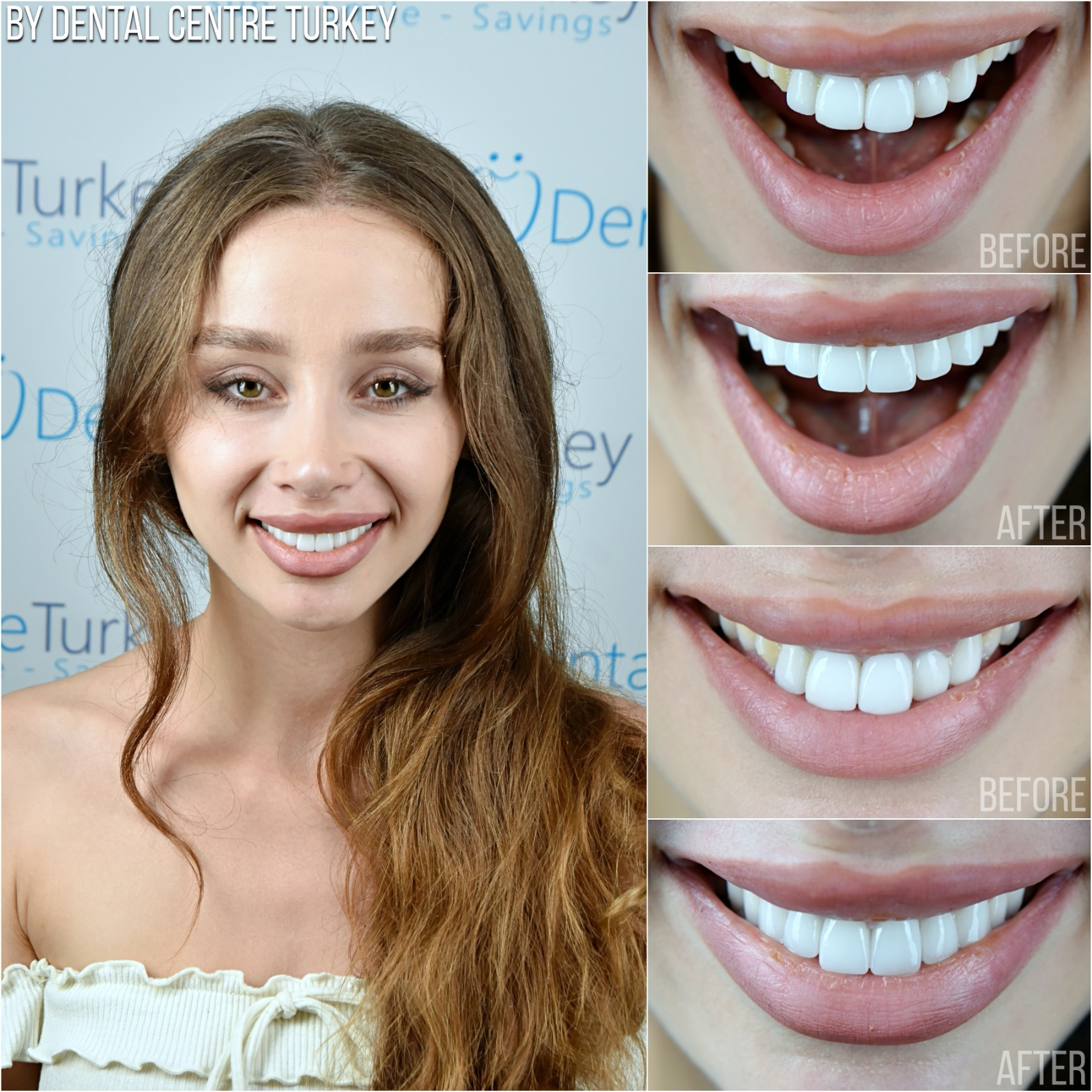 Dental Centre Turkey - Before-After 8